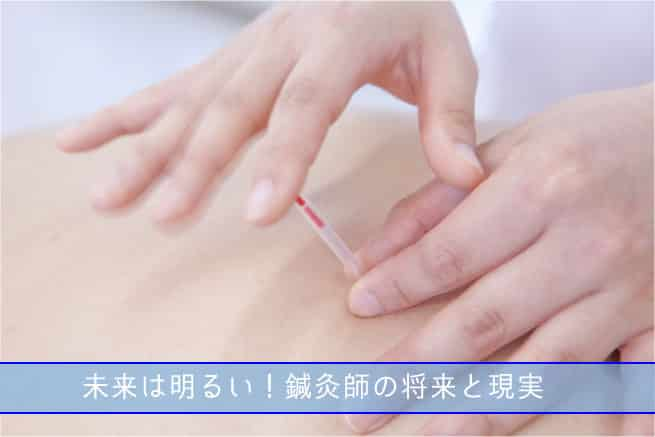 鍼灸師の将来